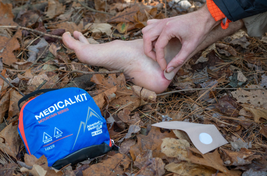 treating a blister with moleskin from the mountain series hiker first aid kit